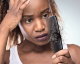 Suffering From Alopecia? Treatment for Natural Black Hair